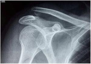 Luxación acromioclavicular izquierda. Archivo del Dpto. de Imágenes Hospital.