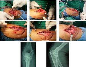 Reinserción del tendón tricipital en olecranon derecho. Archivo fotográfico y radiológico del Hospital Alcívar.