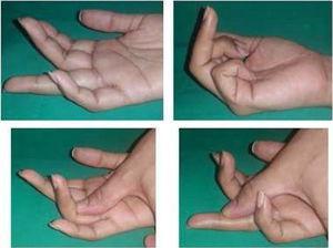 Examen físico de tendones superficial y profundo de dedo anular de mano derecha. Archivo fotográfico Hospital Alcívar.