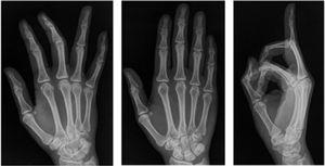 Proyecciones radiográficas en mano derecha no se observa lesión osea. Archivo del Dpto. de Imágenes Hospital Alcívar.