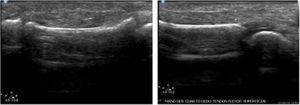 Ecografia en 4to dedo de mano derecha: Ruptura total del tendón extensor profundo a nivel de la articulación interfalángica distal. Archivo del Dpto. de Imágenes Hospital Alcívar.