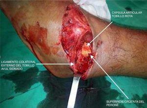 Herida de tobillo izquierdo con ruptura de capsula articular, avulsión del ligamento colateral externo y exposición del peroné. Archivo del Dpto. de Imágenes Hospital Alcívar.