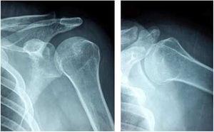 Pinzamiento subacromial a la abducción del hombro izquierdo. Archivo del Dpto. De Imágenes Hospital Alcívar.