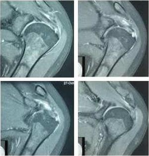RMN de hombro izquierdo: Pinzamiento del espacio subacromial. Hiperintensidad de señal del tendón supraespinoso en relación a tendinitis. A la altura de la inserción en el troquiter se observa pequeña zona de desgarro de espesor total del tendón del supraespinoso. Archivo del Dpto. de Imágenes Hospital Alcívar.