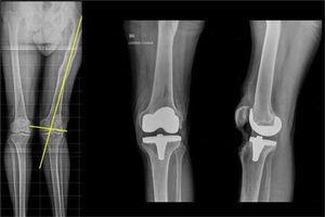 Cortes inusuales intraarticulares y artroplastia total de la rodilla izquierda.