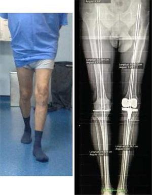 Restitución del eje mecánico del miembro inferior izquierdo en telemetría al año de la cirugía.