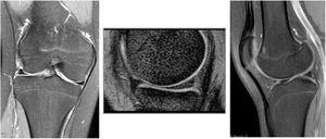 Resonancia magnética de rodilla derecha en la que no se evidencian alteraciones. Fuente: Archivos médicos Hospital Alcivar.