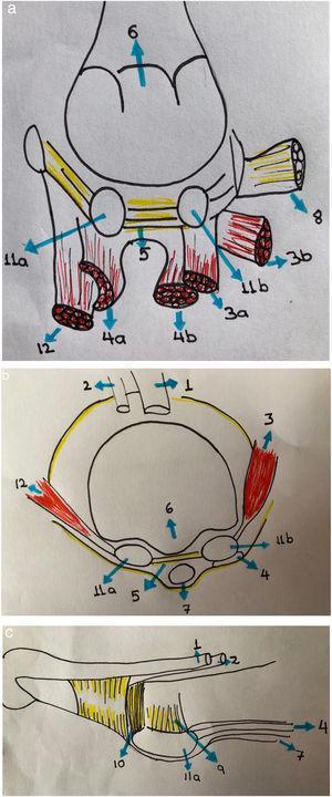 (a,b,c): 1. Tendón extensor hallucis longus 2. Tendón extensor hallucis Brevis 3. Tendón aductor del hallux 3a. Porción oblicua 3b. Porción transversa 4.Tendon flexor hallucis brevis 4a. Lateral 4b. Medial 5. Ligamento intermetatarsiano 6. Cresta 7. Tendon flexor hallucis longus 8. Ligamento transverso profundo metatarsiano 9. Ligamento sesamoideo 10. Ligamento colateral 11a. Sesamoideo medial 11b. Sesamoideo lateral 12. Abductor del hallux.