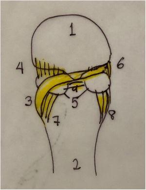 1. Cabeza primer metatarsiano 2. Falange proximal 3. Menisco 4. Ligamento lateral metatarso s sesamoideo 5. Sesamoideos 6. Ligamento medial metatarsosesamoideo 7. Ligamento lateral falange sesamoideo 8. Ligamento medial falange sesamoideo 9. Ligamento intersesamoideo.