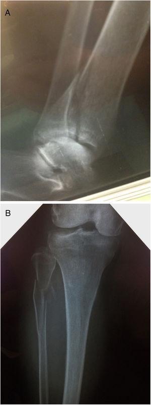 A y B: fracturas de Volkmann y Maisonneuve.