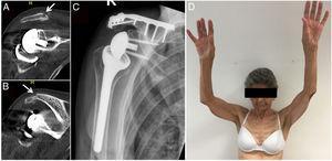 Ejemplo clinico y radiologico del Paciente numero 3 (Caso de fractura por Insuficiencia posterior a artroplastia reversa del Hombro). A y B: Tomografia preoperatoria. C: Radiografia postintervention. C: Examen clinico 3 meses posterior a la intervencion.