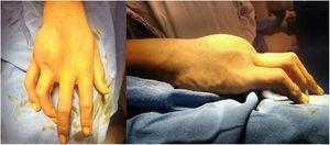 Fotografías clínicas de la mano, donde se observa la tumoración en región dorsal.