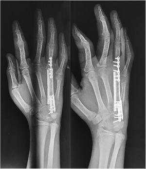 Imágenes radiográficas en el postquirúrgico inmediato del paciente.