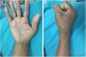 A, B. Se observa una cicatríz normal, sin cambios tróficos, y una movilidad completa de los dedos.