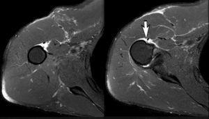 Diagnóstico de imágenes de resonancia magnética. Los cortes preoperatorios de RM axiales debajo del músculo subescapular muestran un desgarro completo del tendón pectoral mayor del hombro derecho en el punto de inserción ósea (flecha).