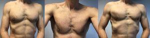 Seis meses después de la cirugía. Las imágenes de seguimiento clínico después de seis meses revelan una contracción funcional del músculo pectoral mayor indolora y recuperación completa del pliegue axilar en comparación con el lado izquierdo y un tendón pectoral mayor fuerte y palpable.