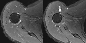 Seis meses después de la RM. Los cortes axiales de RM debajo del músculo subescapular muestran una curación completa del tendón pectoral mayor con la brecha de ruptura completa cerrada (flecha).