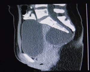 Imagen de resonancia magnética, corte sagital, en la que se observa gran masa quística sacra anterior que desplaza la ampolla rectal hacia anterior.