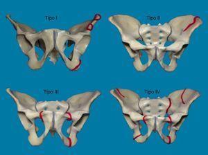 Clasificación de Torode y Zieg. Fuente: Autores.