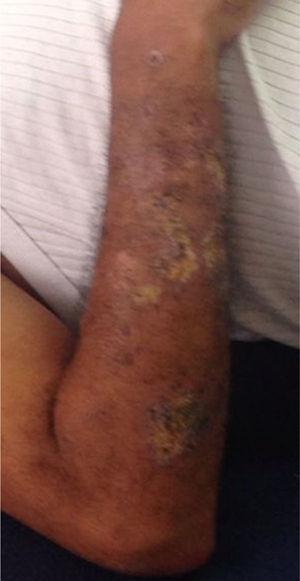 Lesiones dorso brazo izquierdo. Múltiples nódulos entre 10, 20 y 30mm de diámetro, dolorosos, algunos confluentes.