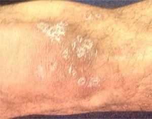 Cara anterior de rodilla derecha. Múltiples nódulos entre 5 y 15mm de diámetro respectivamente, dolorosos, algunos confluentes. Cara anterior de rodilla derecha.