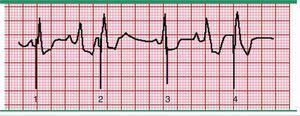 Malfuncionamiento del marcapasos, falla en la detección. El segundo y cuarto complejos QRS estimulados se producen antes de lo esperado de acuerdo con el límite inferior de la frecuencia del marcapasos. El marcapasos ha fallado en detectar los complejos nativos anteriores y por lo tanto no está inhibido por ellos. De este modo, el marcapasos se disparará y estimulará las aurículas o ventrículos a su propio ritmo predeterminado, independientemente del ritmo intrínseco. El intervalo entre los complejos nativos y de ritmo es variable, mientras que los intervalos de los picos de estimulación son constantes. Fuente: Prutkin et al.20.