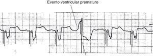 La respuesta sentido ventricular. Ejemplo de la función de respuesta de detección ventricular. Estos aparecen con frecuencia como artefactos de estímulo tardíos dentro de ectopias ventriculares y representan el intento de dispositivos de «resincronizar» el evento ventricular. Modificada de Lloyd et al.22.