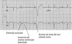 Algoritmo de estimulación ventricular administrado (managed ventricular pacing mode. Rasgos característicos de la modalidad estimulación ventricular administrado. Un evento auricular es seguido por la ausencia de un evento ventricular detectado. El evento auricular posterior es seguido por un evento estimulado ventricular con un retraso AV característicamente corto de 80 ms. Si alguno de los dos eventos auriculares posteriores estimulados había sido no conducido, el dispositivo habría vuelto al modo DDD durante 1 minuto. Modificada de Lloyd et al.22.