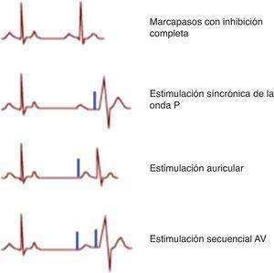 Ritmos observados con la función de marcapasos bicameral normal. Los ritmos que ocurren en un paciente con un marcapasos DDD dependen de la frecuencia cardíaca subyacente y la conducción del nodo auriculoventricular. La espiga de marcapasos está representada en azul. Primer panel: marcapasos con inhibición completa. Segundo panel: estimulación síncrónica de la onda P. Tercer panel: estimulación auricular. Cuarto panel: estimulación secuencial AV. Modificada de Hayes et al.8. El color de esta figura solo puede apreciarse en la versión electrónica del artículo