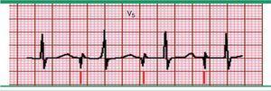 Marcapasos auricular. Registro electrocardiográfico, en derivación V5 donde se observa una única espiga (marcado por las líneas inferiores) seguido a una onda P, con intervalo PR normal y complejo QRS normal. Fuente: Prutkin et al.20.