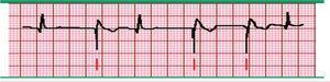Marcapasos ventricular. Registro electrocardiográfico donde se observa una única espiga de estimulación (marcado por las líneas inferiores) seguido por un complejo QRS ancho y atípico que asemeja a un latido ventricular. Se presentan algunos complejos QRS normales que suprimen la función del marcapasos cuando aparecen más rápido que la tasa configurada. Fuente: Prutkin et al.20.
