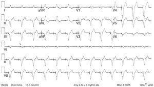 Electrocardiograma normal de estimulación ventricular. El trazado muestra los complejos QRS ensanchados típicos de ritmo ventricular. Se observa la similitud con un patrón de bloqueo de rama izquierda con eje izquierdo, así como discordancia en la onda T/QRS. Modificada de Cardall et al.21.