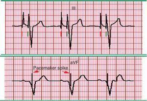 Estimulación auricular de doble cámara. A) Registro electrocardiográfico, en derivación DIII donde se observan dos espigas del marcapasos en cada complejo; se observa una espiga auricular (marcado por línea roja) y una onda P asociada, seguida por una espiga ventricular (marcado por líneas verdes) y un complejo QRS estimulado. La morfología de la onda P es variable, dependiendo de la ubicación del electrodo dentro de la aurícula derecha. B) Se observa una onda P normal o intrínseca, que después de intervalo PR establecido, es continuado por una espiga y un QRS estimulado que cuenta con una morfología bizarra que asemeja un bloqueo de rama izquierda o un complejo ventricular. Fuente: Prutkin et al.20. El color de esta figura solo puede apreciarse en la versión electrónica del artículo