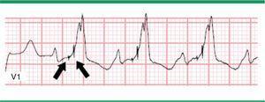 Electrocardiograma con estimulación biventricular. Modificada de Prutkin et al.20.