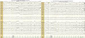 Videotelemetría de 24 h que evidencia 4 episodios de los anteriormente descritos con cambios eléctricos en el trazado de EEG, donde se aprecia lenificación en los electrodos P3 y C3, con ondas agudas y posterior desorganización de los ritmos de fondo por artificio de movimiento y contracción muscular.