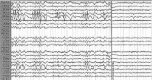 Espigas en región occipital y a la derecha, la supresión de las mismas con la mirada. Fuente: tomado de Carrizosa Moog y Castaño Parra2.