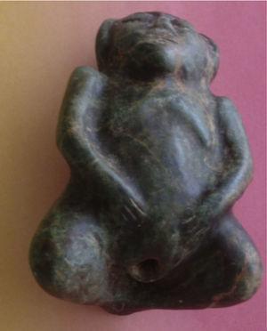 Mujer con las piernas dobladas y recogidas, con las manos en el bajo vientre, mostrando el ano dilatado.