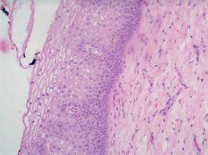 Exocérvix negativo para NIC y VPH (colposcopia).