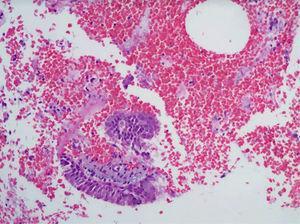 Endocérvix con inflamación crónica y atipias de naturaleza reparadora (colposcopia).