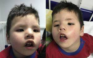 Diplejía facial y parálisis bilateral del VI par.