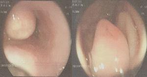 Masa en el tercio inferior de esófago, gastropatía antral y úlcera duodenal Forrest III.