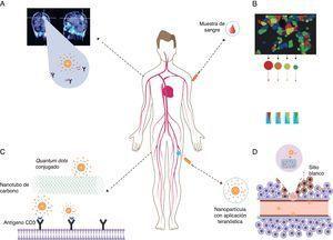 Aplicación de nanopartículas multifuncionales en el diagnóstico, tratamiento y teranóstica de enfermedades autoinmunes. A) El medio de contraste con nanopartículas se usa para el diagnóstico in vivo en procedimientos de tomografías y resonancias magnéticas nucleares. B) Bioconjugados de nanopartículas heterofuncionalizadas cubiertas con anticuerpos, aptámeros, péptidos y moléculas pequeñas, usados para el marcaje de tejidos sano y anormal en pruebas diagnósticas in vitro. C) Los quantums dots pueden ser usados para marcar fármacos o nanotransportadores. D) Las nanopartículas pueden emplearse como agentes teranósticos con alta especificidad molecular. Fuente: tomado de Autoimmunity. From bench to bedside, previa autorización del autor Dr. Juan Manuel Anaya.