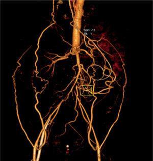 Vista frontal angiotac obstrucción de arterias colaterales.
