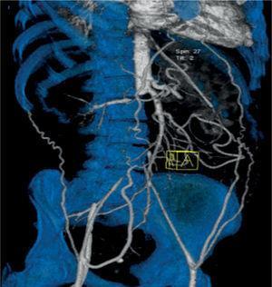 Vista anterior derecha con trombosis de arteria renal derecha.