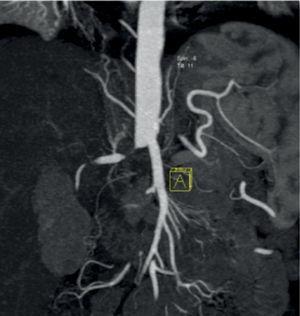 Vista tomográfica de trombosis de aorta abdominal.
