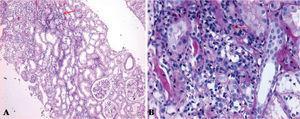 """Histopatología renal, en la que se muestra un infiltrado inflamatorio linfoplasmocitario intersticial con distribución en parches bajo la forma de agregado linfoide (A) dando aspecto en """"fila india"""" con atrofia tubular y pérdida del patrón """"espalda con espalda"""" normal de los túbulos, a mayor aumento (B)."""