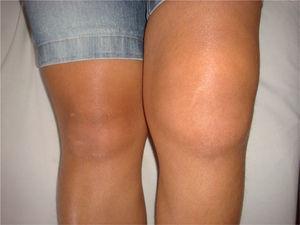 Paciente con aumento de volumen de la rodilla izquierda