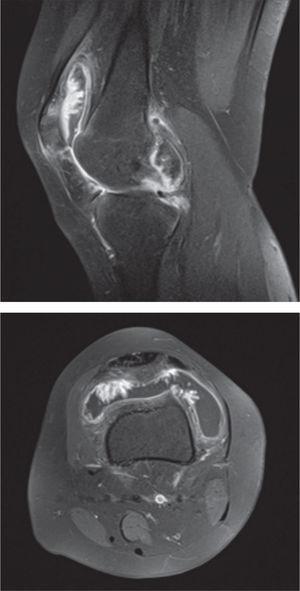 RMN que muestra hipertrofia sinovial y una masa de partes blandas intra-articular, con hipointensidad en las secuencias T1 corte transversal y en la secuencia T2 corte sagital