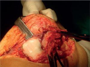 Cirugía terapéutica con exéresis sinovial