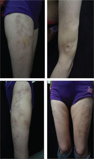 Hallazgos Cutáneos. Calcinosis universal. Placas nodulares induradas irregulares sobreelevadas en extremidades.